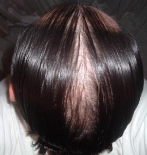 Keratinovoe la reconstitución de los cabello de sekuschihsya de las puntas